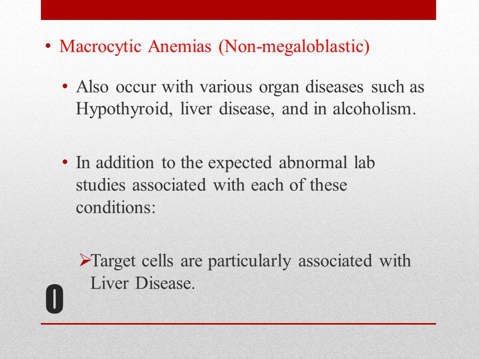 O Macrocytic Anemias (Non-megaloblastic)