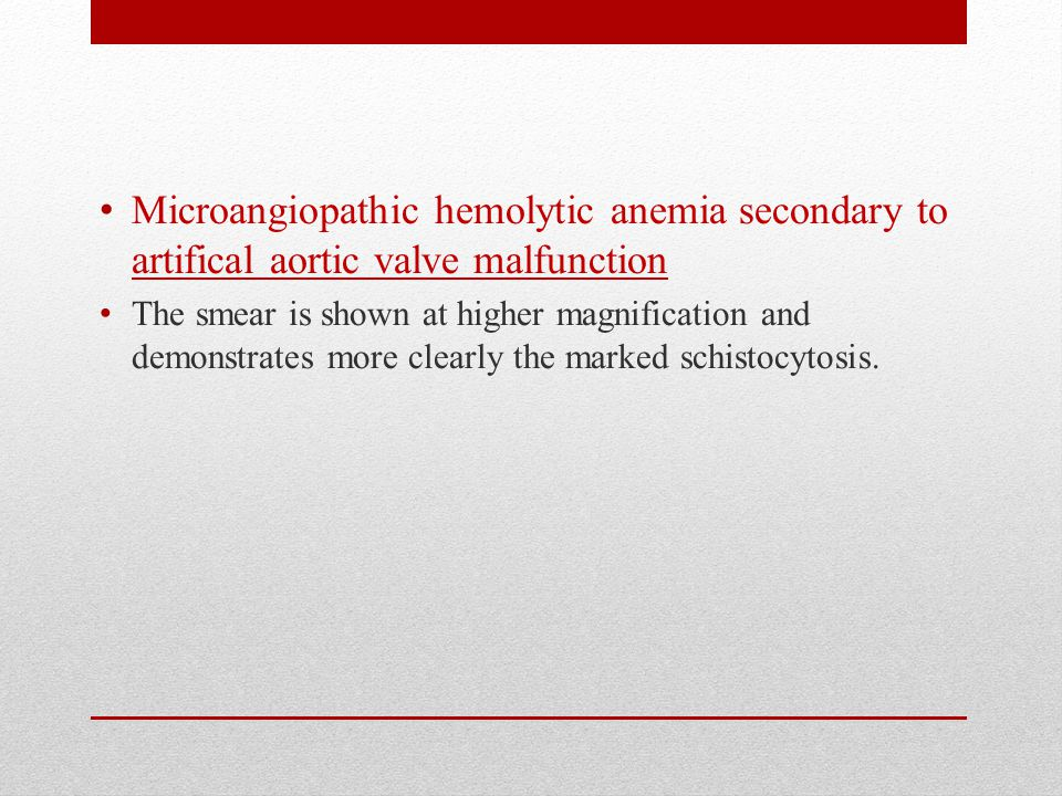 Microangiopathic hemolytic anemia secondary to artifical aortic valve malfunction