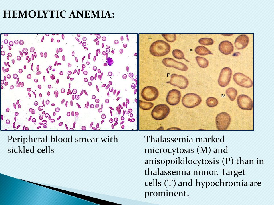 HEMOLYTIC ANEMIA: Peripheral blood smear with sickled cells