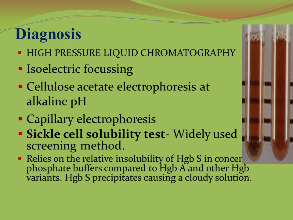 Diagnosis Isoelectric focussing