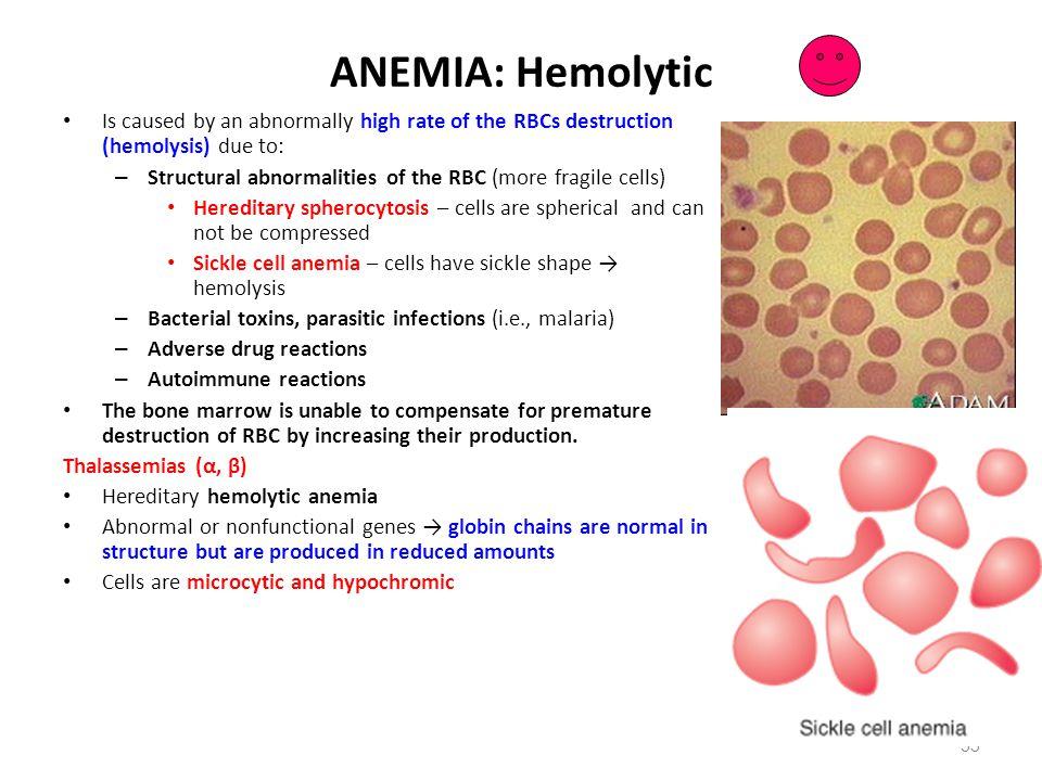 ANEMIA: Hemolytic Spherocytosis