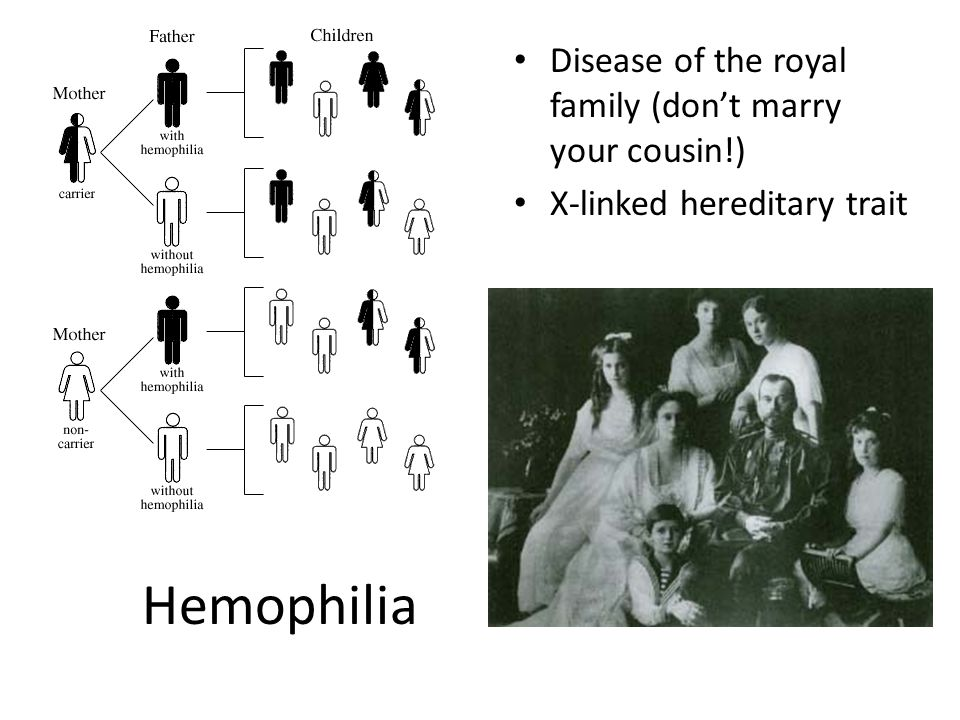 Hemophilia Disease of the royal family (don't marry your cousin!)