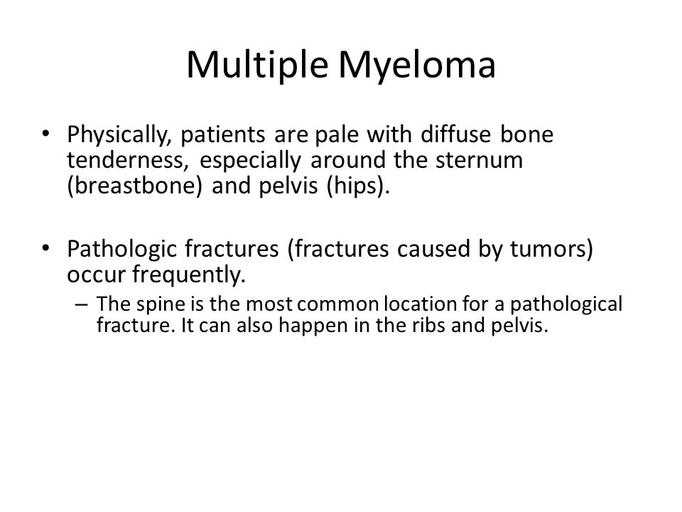 Multiple Myeloma Physically, patients are pale with diffuse bone tenderness, especially around the sternum (breastbone) and pelvis (hips).