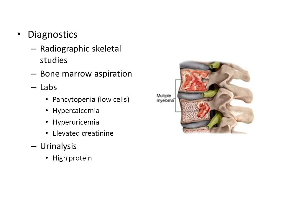 Diagnostics Radiographic skeletal studies Bone marrow aspiration Labs