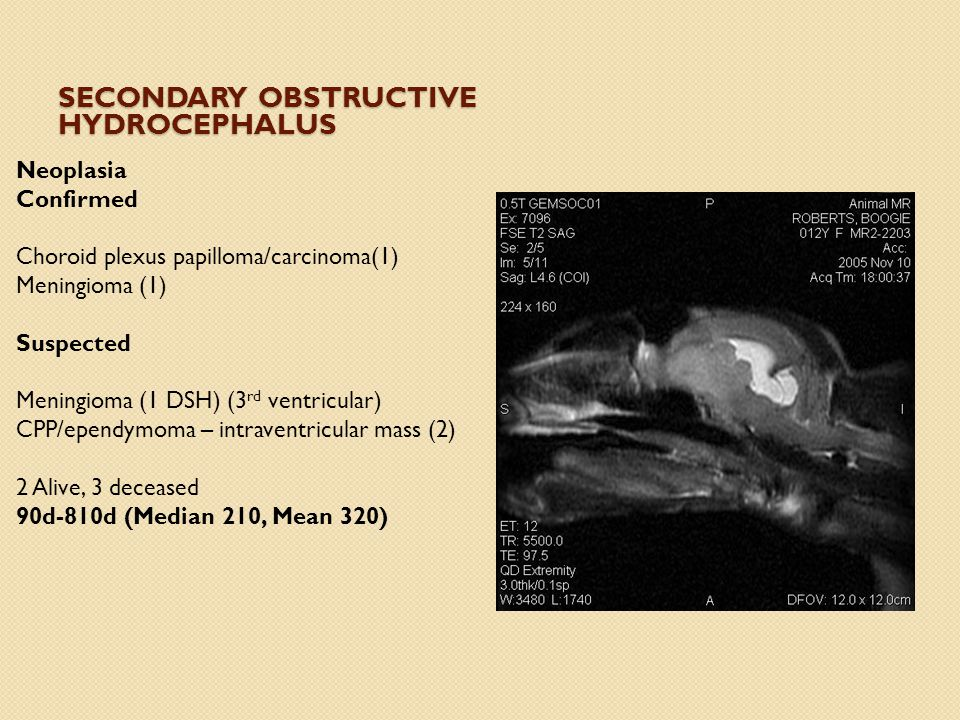 Secondary Obstructive Hydrocephalus
