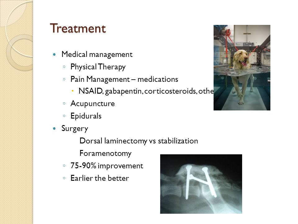 Treatment Medical management Physical Therapy