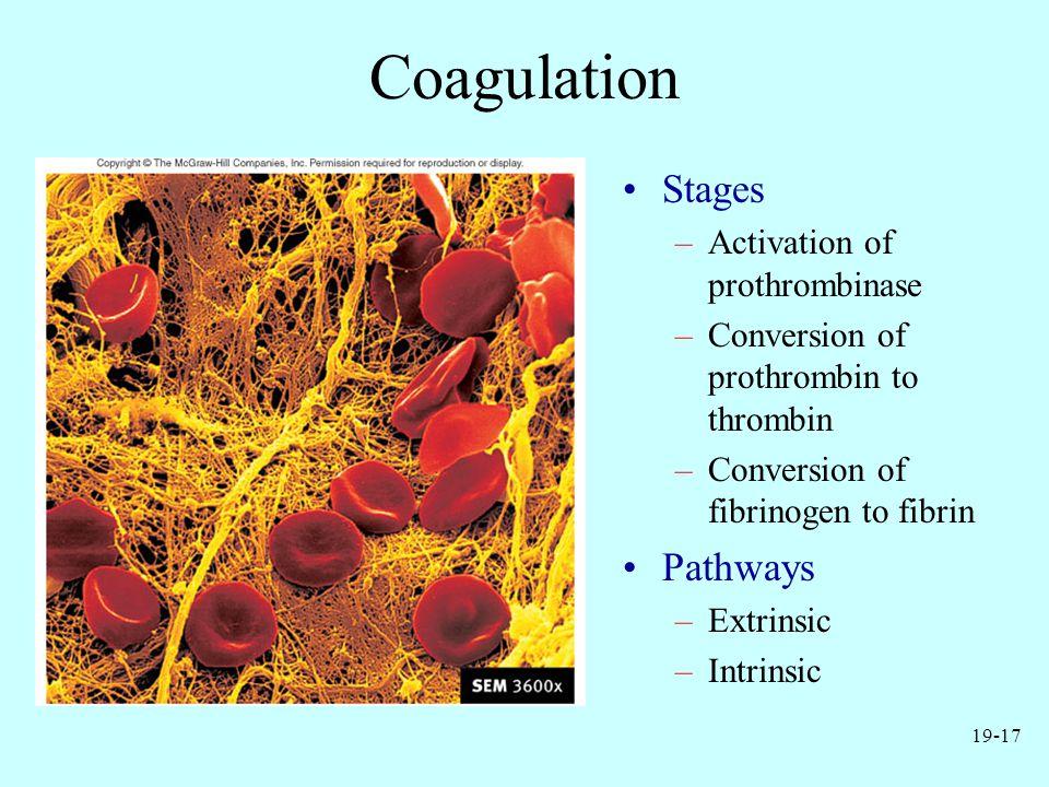 Coagulation Stages Pathways Activation of prothrombinase