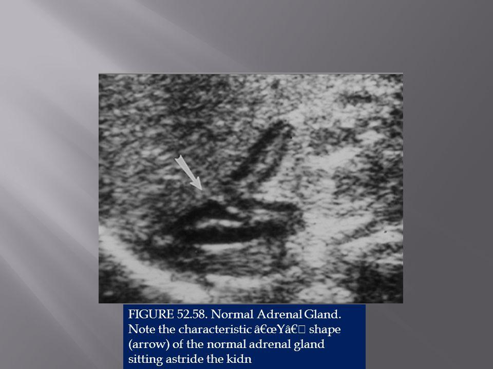 FIGURE 52. 58. Normal Adrenal Gland