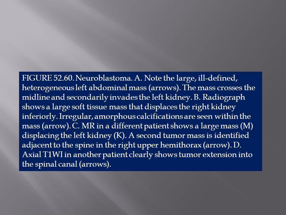 FIGURE 52. 60. Neuroblastoma. A
