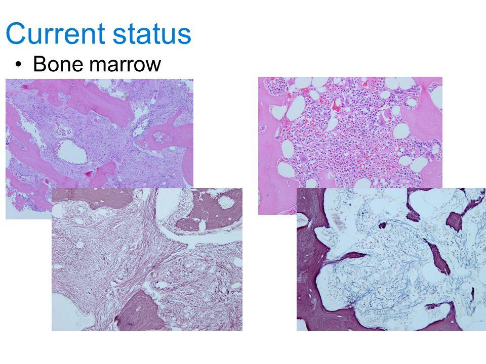 Current status Bone marrow