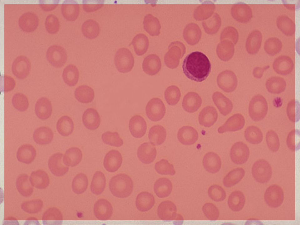 The most common cause for a hypochromic microcytic anemia is iron deficiency.