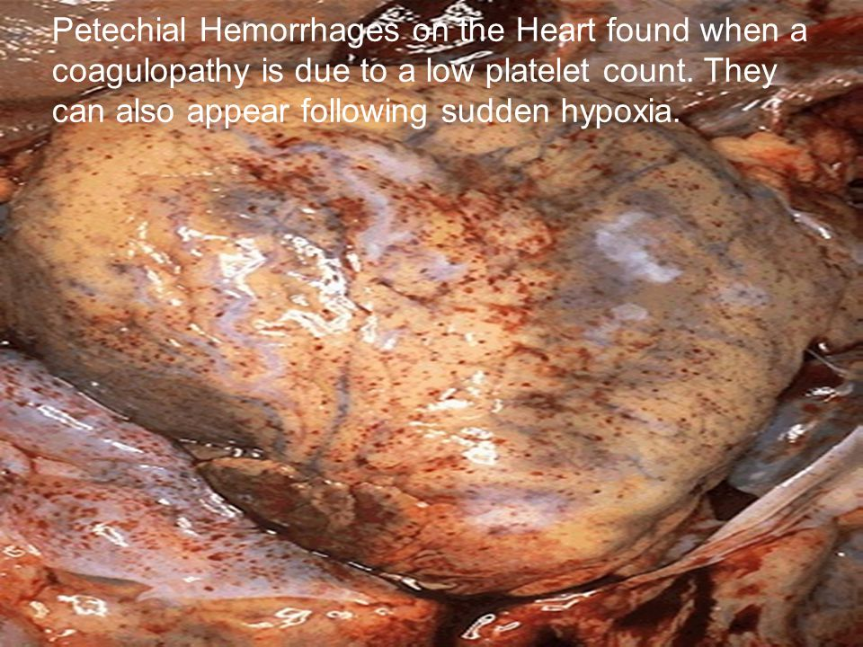 Petechial Hemorrhages on the Heart found when a coagulopathy is due to a low platelet count.