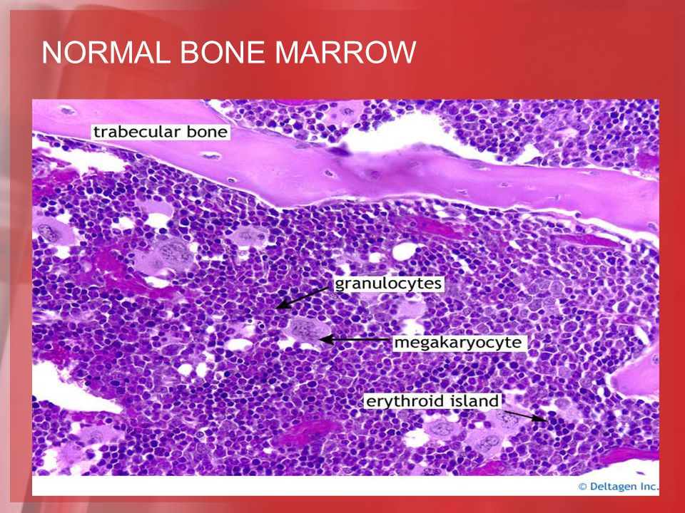 NORMAL BONE MARROW