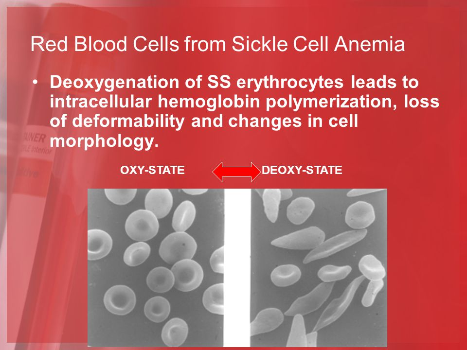 Red Blood Cells from Sickle Cell Anemia