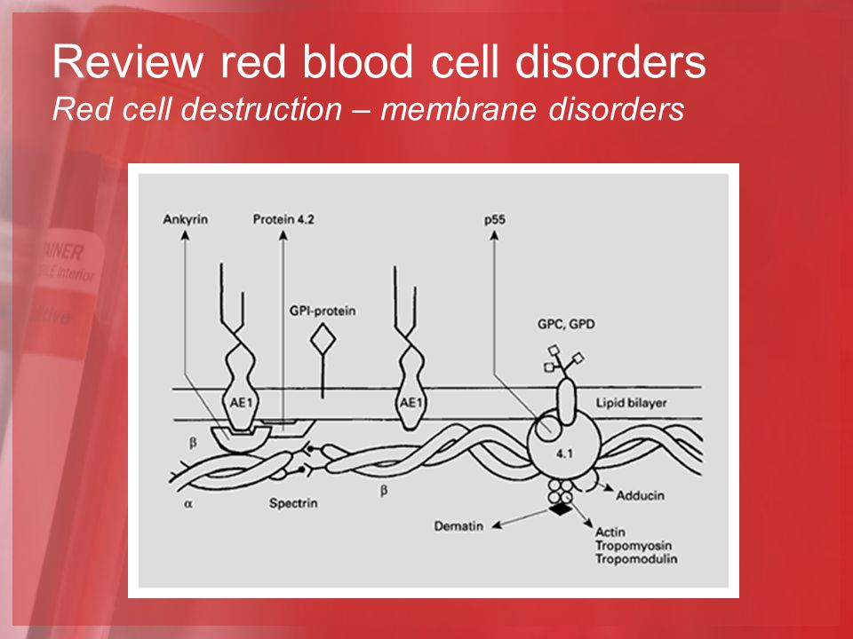 Review red blood cell disorders Red cell destruction – membrane disorders
