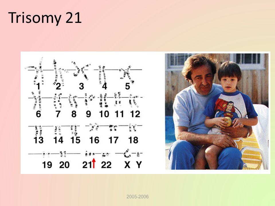 Trisomy 21 2005-2006