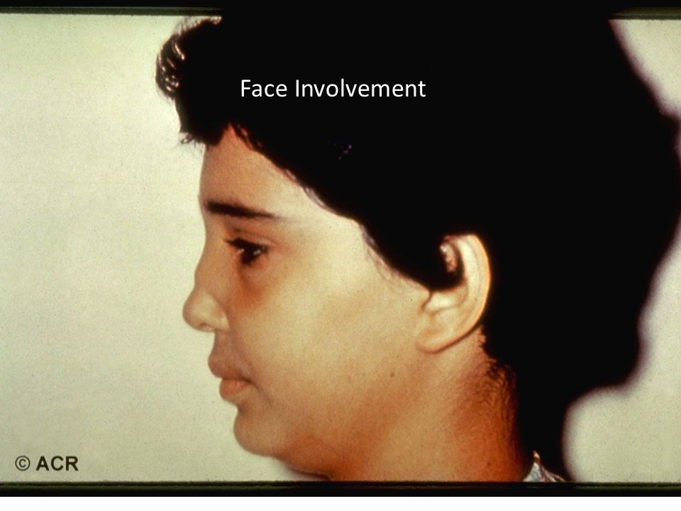 Face Involvement