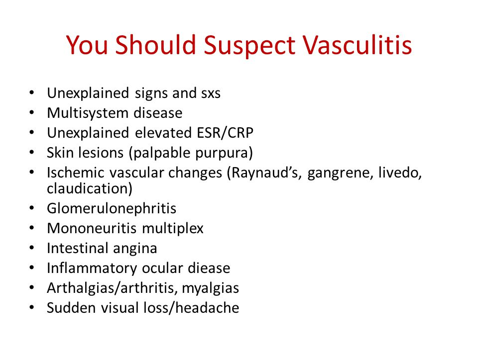 You Should Suspect Vasculitis