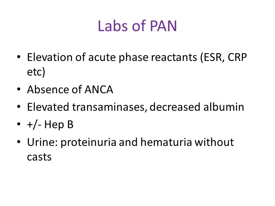 Labs of PAN Elevation of acute phase reactants (ESR, CRP etc)