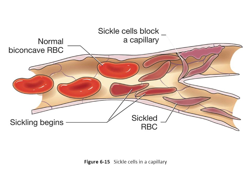 Figure 6-15 Sickle cells in a capillary