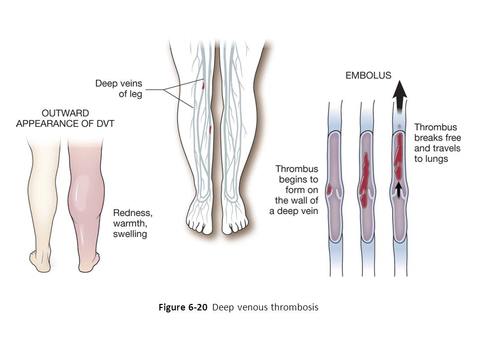 Figure 6-20 Deep venous thrombosis
