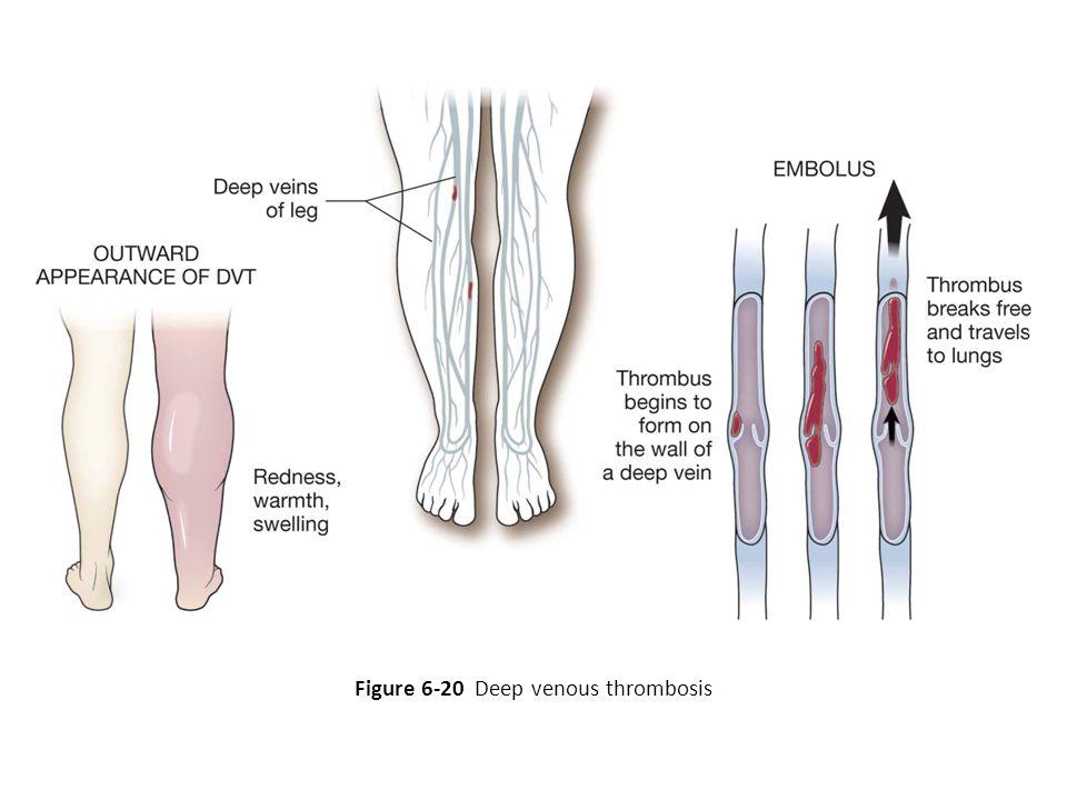 Figure 6-20 Deep venous thrombosis