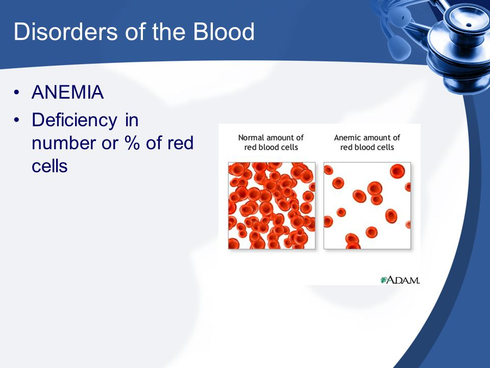 Disorders of the Blood ANEMIA Deficiency in number or % of red cells