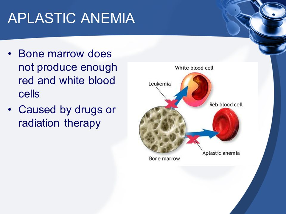 APLASTIC ANEMIA Bone marrow does not produce enough red and white blood cells.