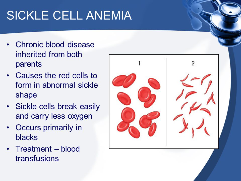 SICKLE CELL ANEMIA Chronic blood disease inherited from both parents