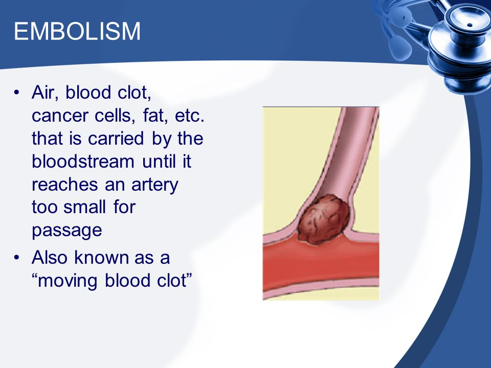 EMBOLISM Air, blood clot, cancer cells, fat, etc. that is carried by the bloodstream until it reaches an artery too small for passage.