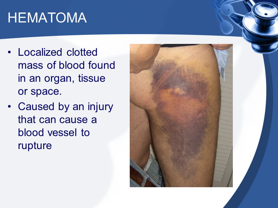 HEMATOMA Localized clotted mass of blood found in an organ, tissue or space.