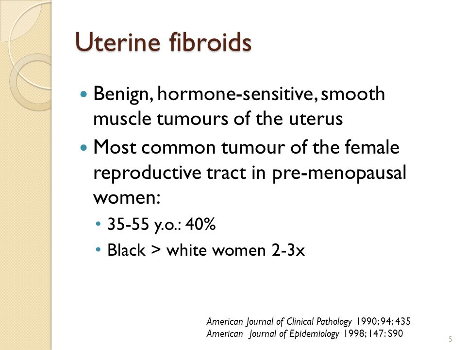 Uterine fibroids Benign, hormone-sensitive, smooth muscle tumours of the uterus.