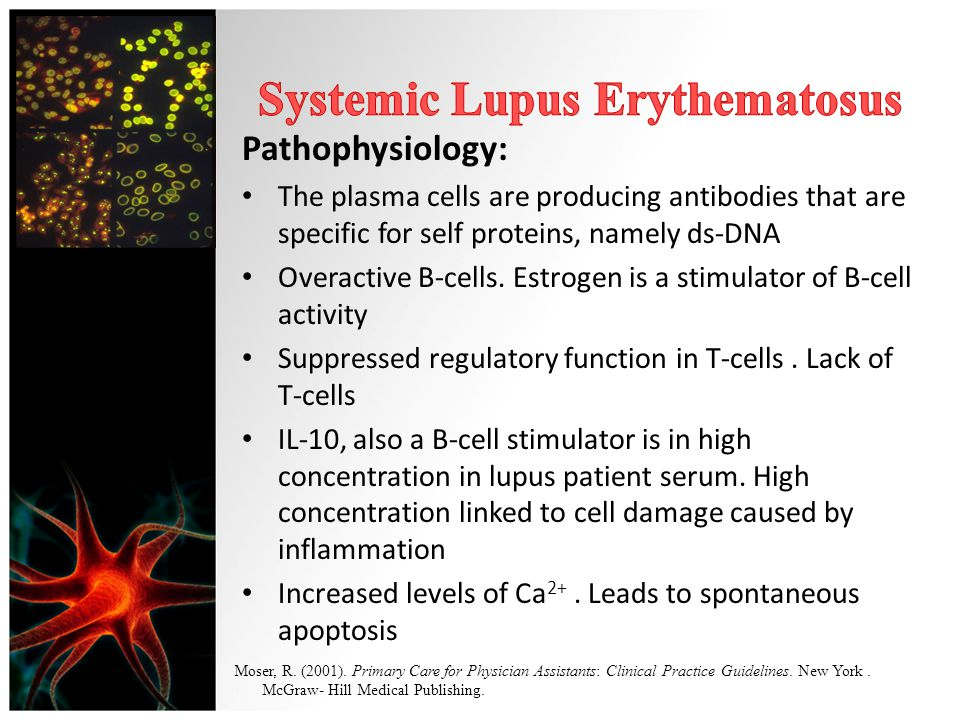 systemic lupus erythematosus essay 1 concept paper systemic lupus erythematosus draft 1 i introduction 2 systemic lupus erythematosus (sle) is a chronic disease characterized by.
