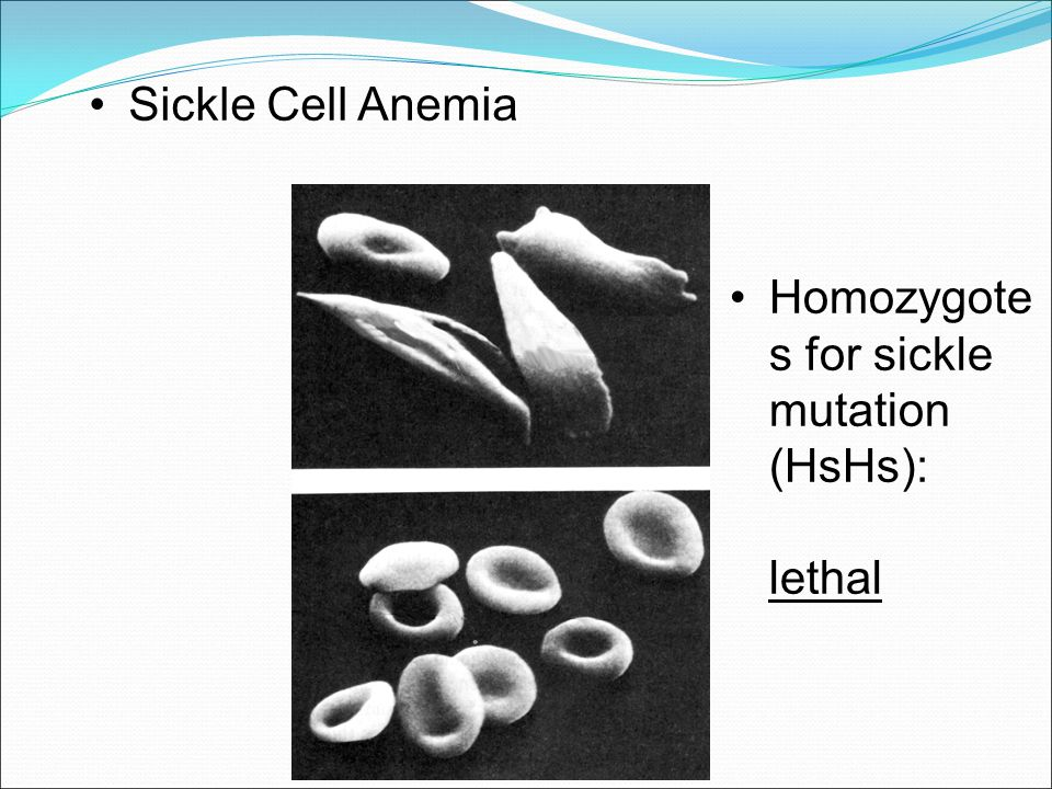 Sickle Cell Anemia Homozygotes for sickle mutation (HsHs): lethal