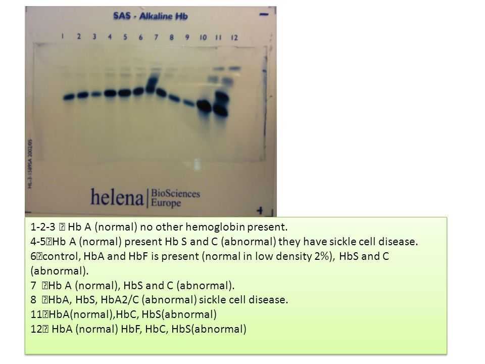 1-2-3  Hb A (normal) no other hemoglobin present.