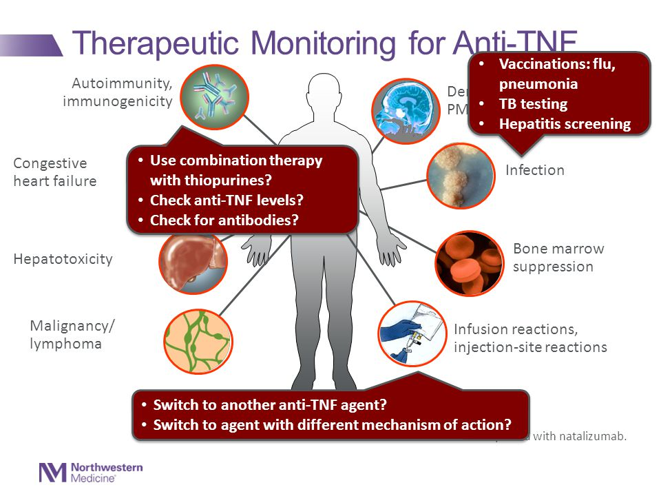 Therapeutic Monitoring for Anti-TNF