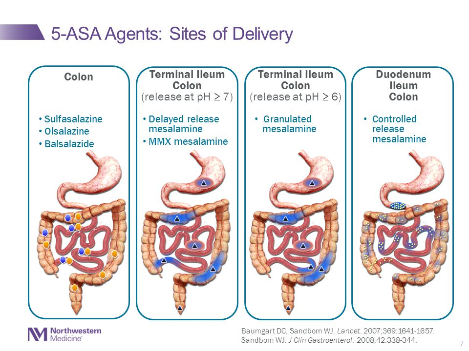 5-ASA Agents: Sites of Delivery