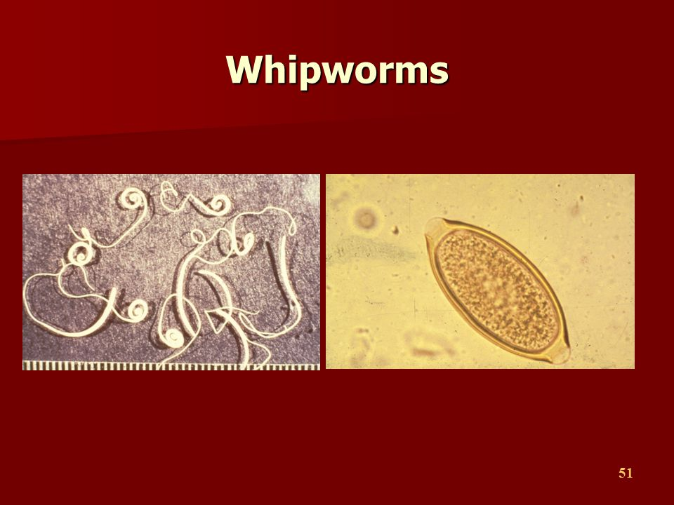 Whipworms