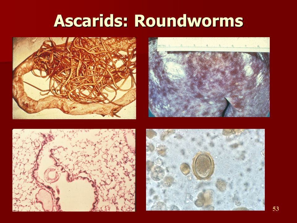 Ascarids: Roundworms
