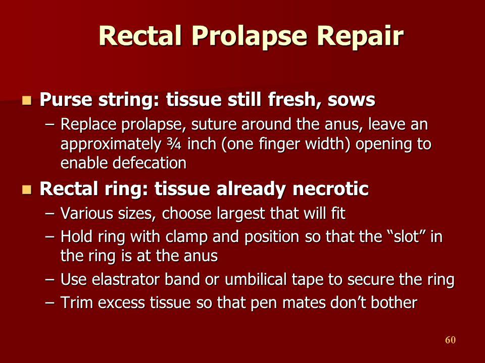 Rectal Prolapse Repair