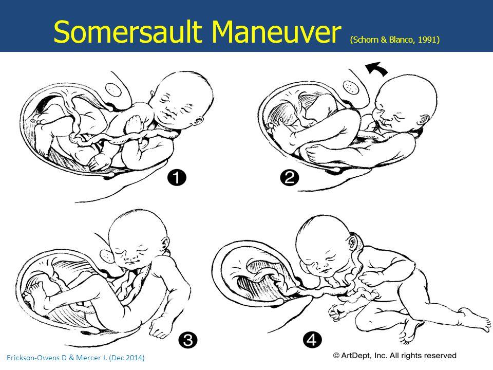Somersault Maneuver (Schorn & Blanco, 1991)