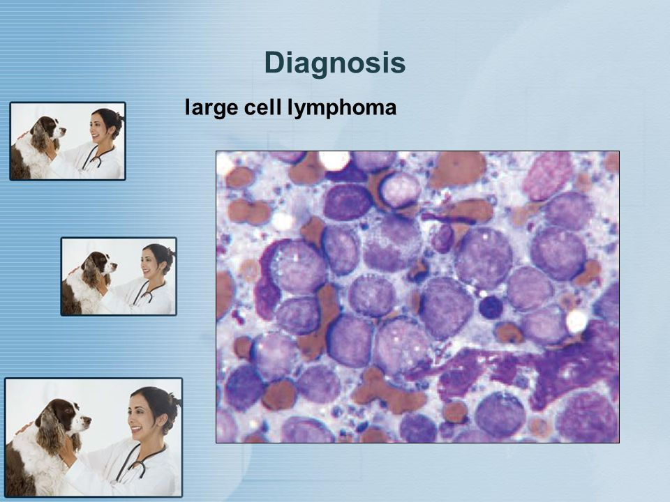 Diagnosis large cell lymphoma