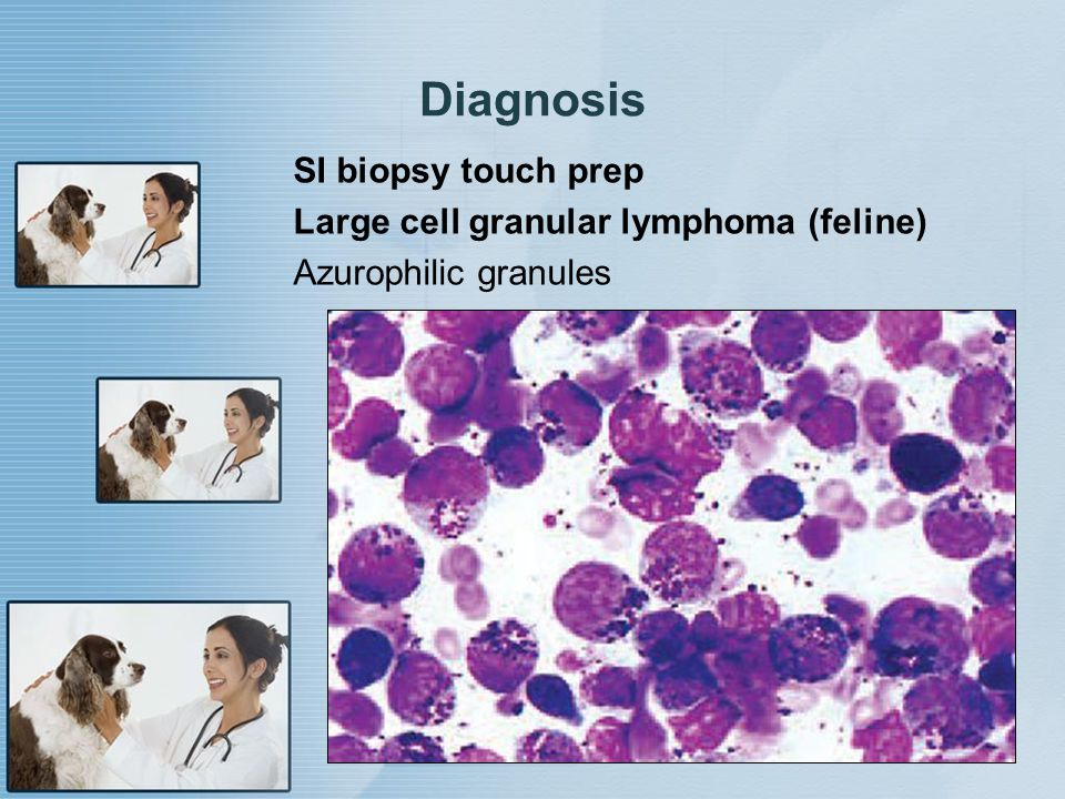 Diagnosis SI biopsy touch prep Large cell granular lymphoma (feline)