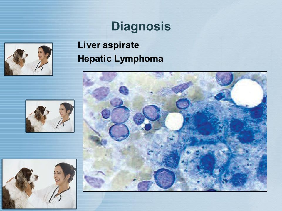 Diagnosis Liver aspirate Hepatic Lymphoma