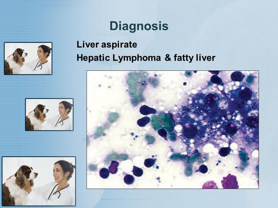 Diagnosis Liver aspirate Hepatic Lymphoma & fatty liver