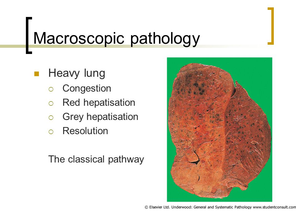 Macroscopic pathology