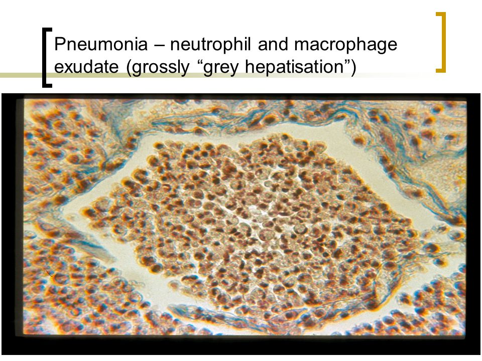 Pneumonia – neutrophil and macrophage exudate (grossly grey hepatisation )