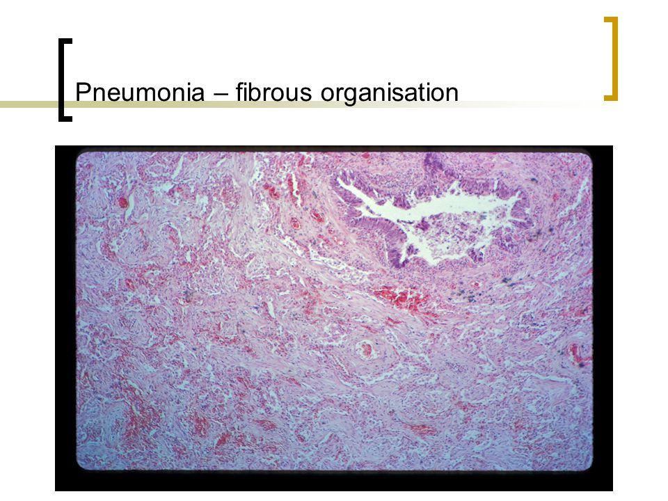 Pneumonia – fibrous organisation