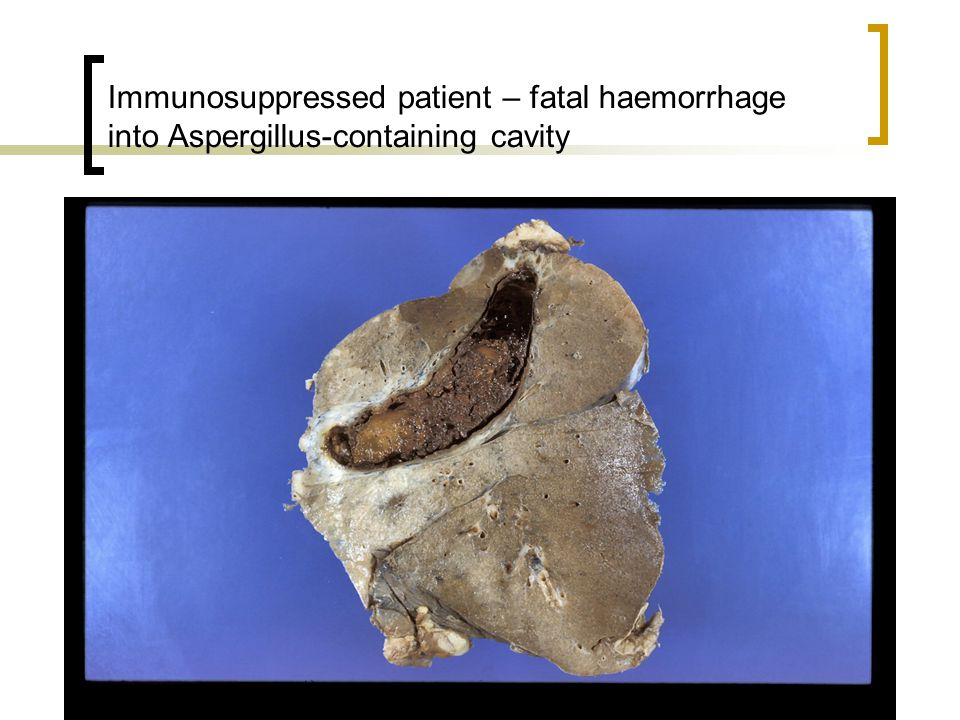 Immunosuppressed patient – fatal haemorrhage into Aspergillus-containing cavity