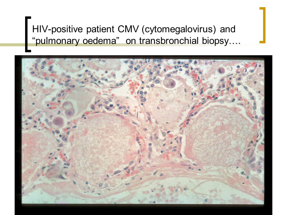 HIV-positive patient CMV (cytomegalovirus) and pulmonary oedema on transbronchial biopsy….